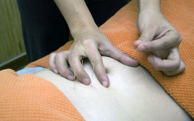 Six Important Benefits of Acupuncture Treatments