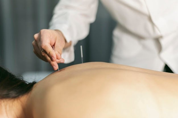 4 Ways Acupuncture Boosts Your Overall Well-Being